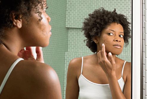 black-woman-acne-skin
